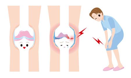 Women joint pain Illustration