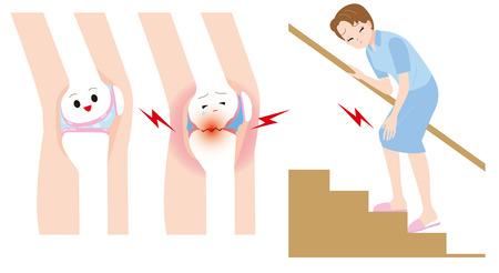 de rodillas: Mujer para subir las escaleras. Mujeres dolor en las articulaciones