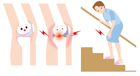 articular: Woman to climb the stairs. Women joint pain