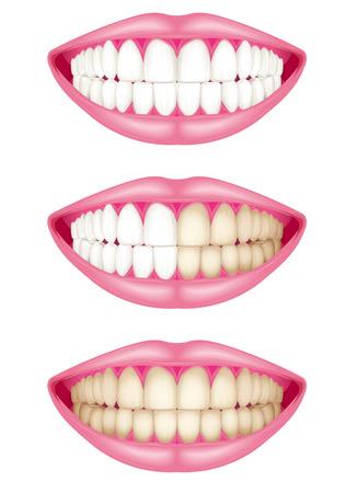 Färbung von Zähnen. Plakette Illustration