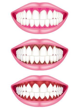 regression: Teeth and gums.