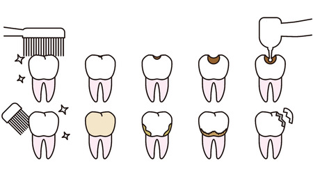 Teeth and gums trouble. Clean gums and trouble-some gums