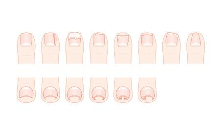 Trouble of toenails. Ingrown nail.