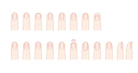 Shape and trouble of fingernail Illustration