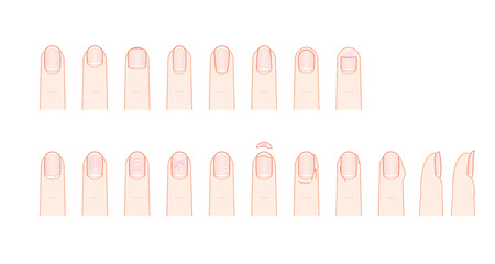Shape and trouble of fingernail Illustration
