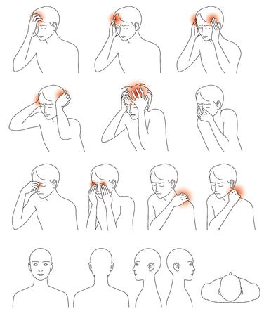 forehead: Headache and stiff neck