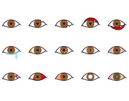 目の病気  イラスト・ベクター素材