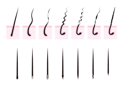 frizz: Curly hair. Hair loss.hair root. Illustration