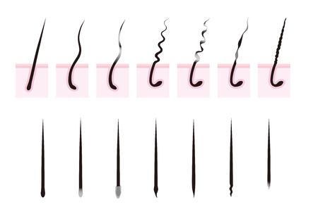 curly: Curly hair. Hair loss.hair root. Illustration