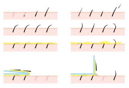 pores: Depilatory wax