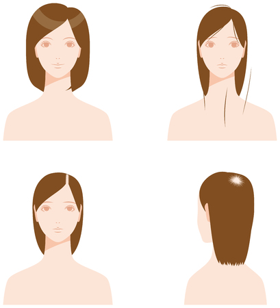 wigs: Thinning hair