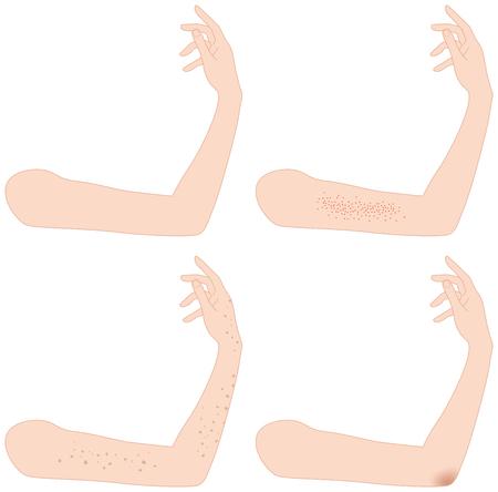 blackhead: Arm. Spots. Stain. Blackhead.