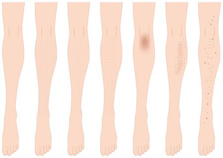 shiver: Leg trouble. leg hair. pores. stain. Illustration