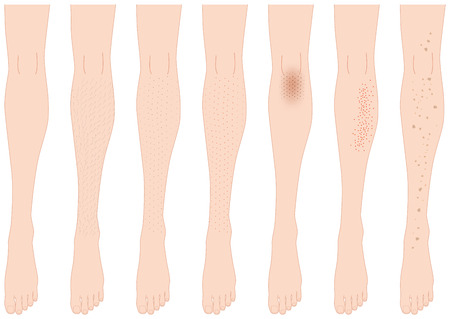 Leg trouble. leg hair. pores. stain. Illustration