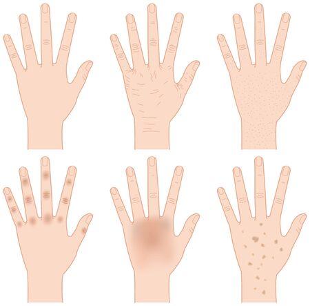 blackhead: Hand trouble. Sagging. Smear. Blackhead. Illustration
