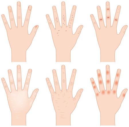 dry skin: Rough hand Illustration