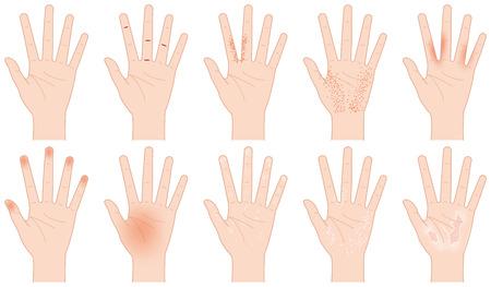 beautification: Rough hand Illustration