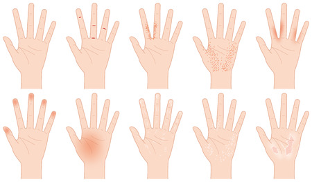 Rough hand Illustration