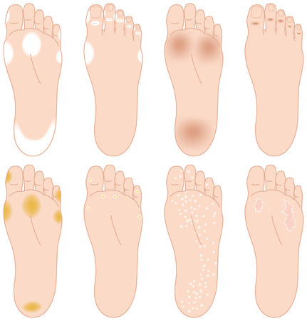 aching: Troubles of the soles of the feet. Athletes foot etc.