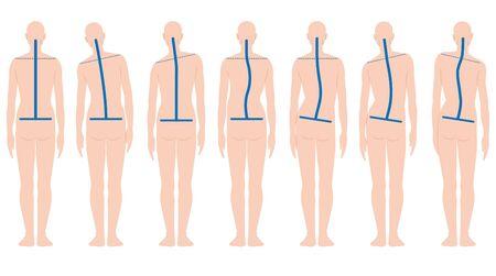 Forma de espalda humana