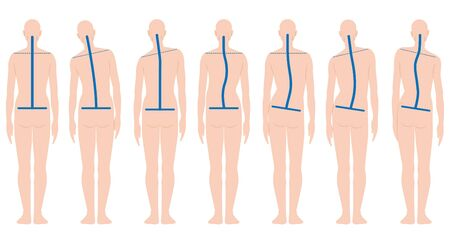 forme arrière humaine