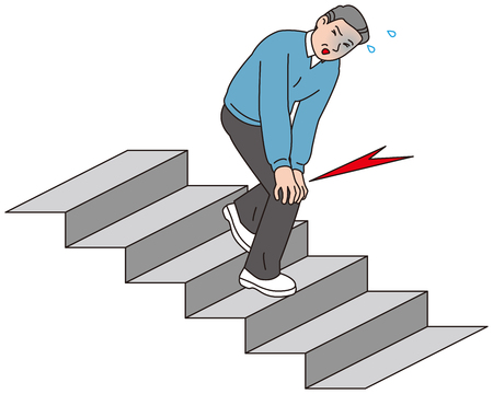 A middle-aged man who got knee pain when descending the stairs