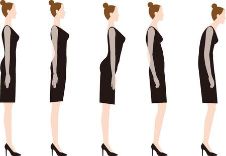 Uma mulher de salto alto. Boa postura e má postura. Foto de archivo - 93453379