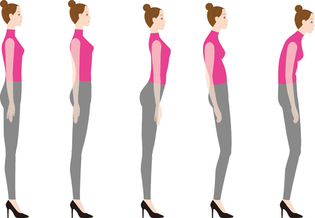Uma mulher de salto alto. Boa postura e má postura. Foto de archivo - 93453024