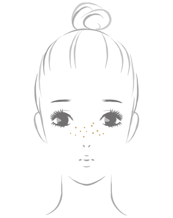 Women suffering from freckles