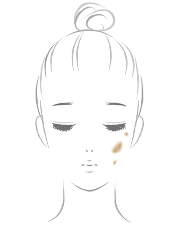 Women suffering from spots.