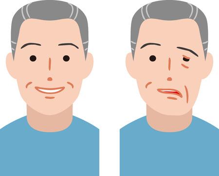 Anziano della paralisi del nervo facciale Vettoriali