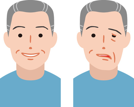 Ciudadano mayor de parálisis del nervio facial Ilustración de vector