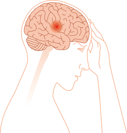 Headache and brain image