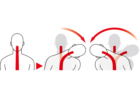 Shock from the side and whiplash injury Illustration