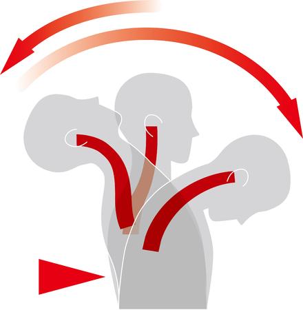 Beweging van de nek door impact van achteren. Whiplash-blessure.