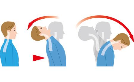 Movement of the neck due to impact from behind. Whiplash injury.