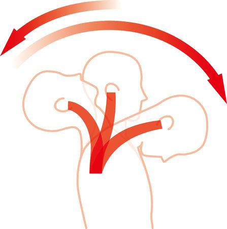 Movimiento del cuello por impacto de espalda. Lesión por latigazo cervical. Ilustración de vector