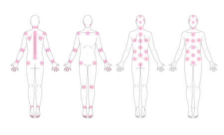 A place where pain in the human body occurs. Schematic without gender.