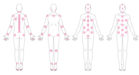 Human body. Places where pain occurs. Schematic diagram without gender. Illustration