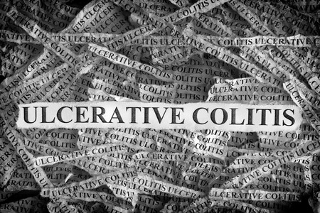 Ulcerative Colitis. Torn pieces of paper with the words Ulcerative Colitis. Concept image. Black and White. Close up. Stock Photo