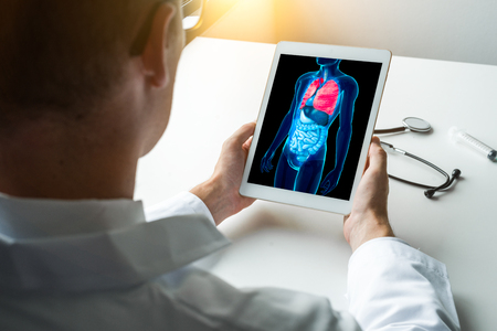 Doctor working with x-ray of lungs on a laptop. Stock Photo