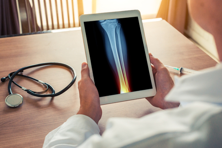 Doctor holding a digital tablet with x-ray of leg with ankle and pain.