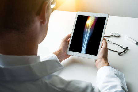 Doctor holding a digital tablet with x-ray of leg with pain on the external knee.