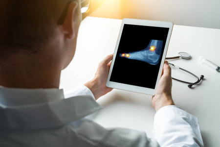 Doctor holding a digital tablet with x-ray of a pain in the ankle and toes