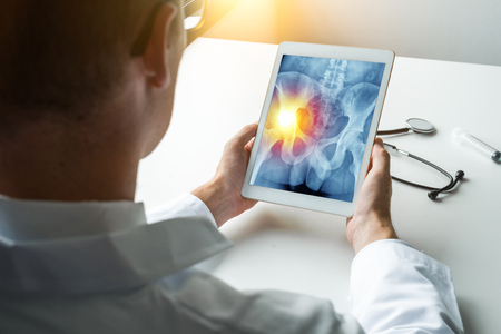 Doctor holding a digital tablet with x-ray of hips with pain