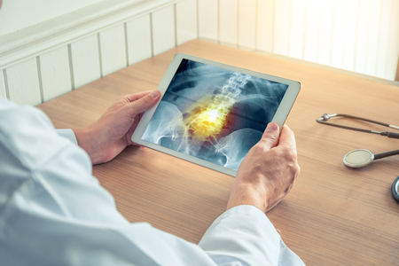 Doctor holding a digital tablet with x-ray of hips and pain inside the spine