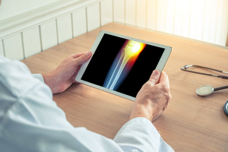 Doctor holding a digital tablet with x-ray of the leg. Pain in the internal knee Stock Photo