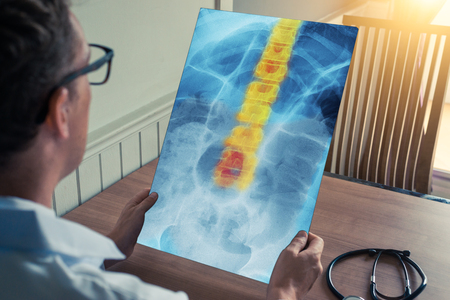 Doctor holding a x-ray of hips and chest with pain on spine in office