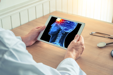 Doctor holding a digital tablet with x-ray of 3D skull with pain on the front of brain. Headache migraine or trauma Фото со стока