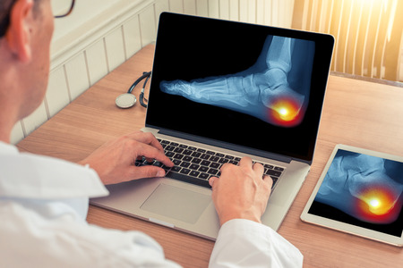 Doctor watching a laptop with x-ray of pain relief in the heel of a foot in a office Stok Fotoğraf